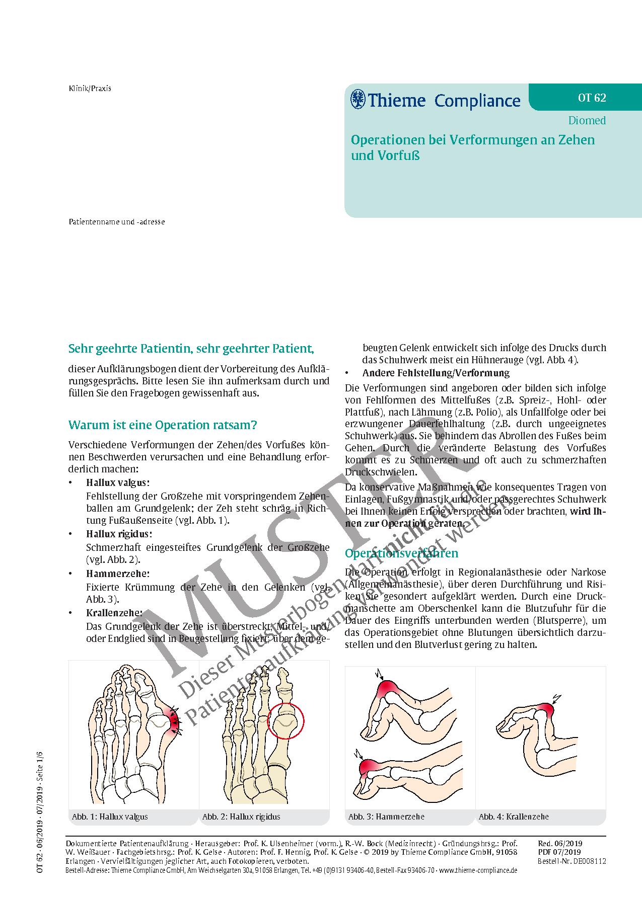 Großartig Frontallappen Anatomie Mri Galerie - Anatomie Ideen ...