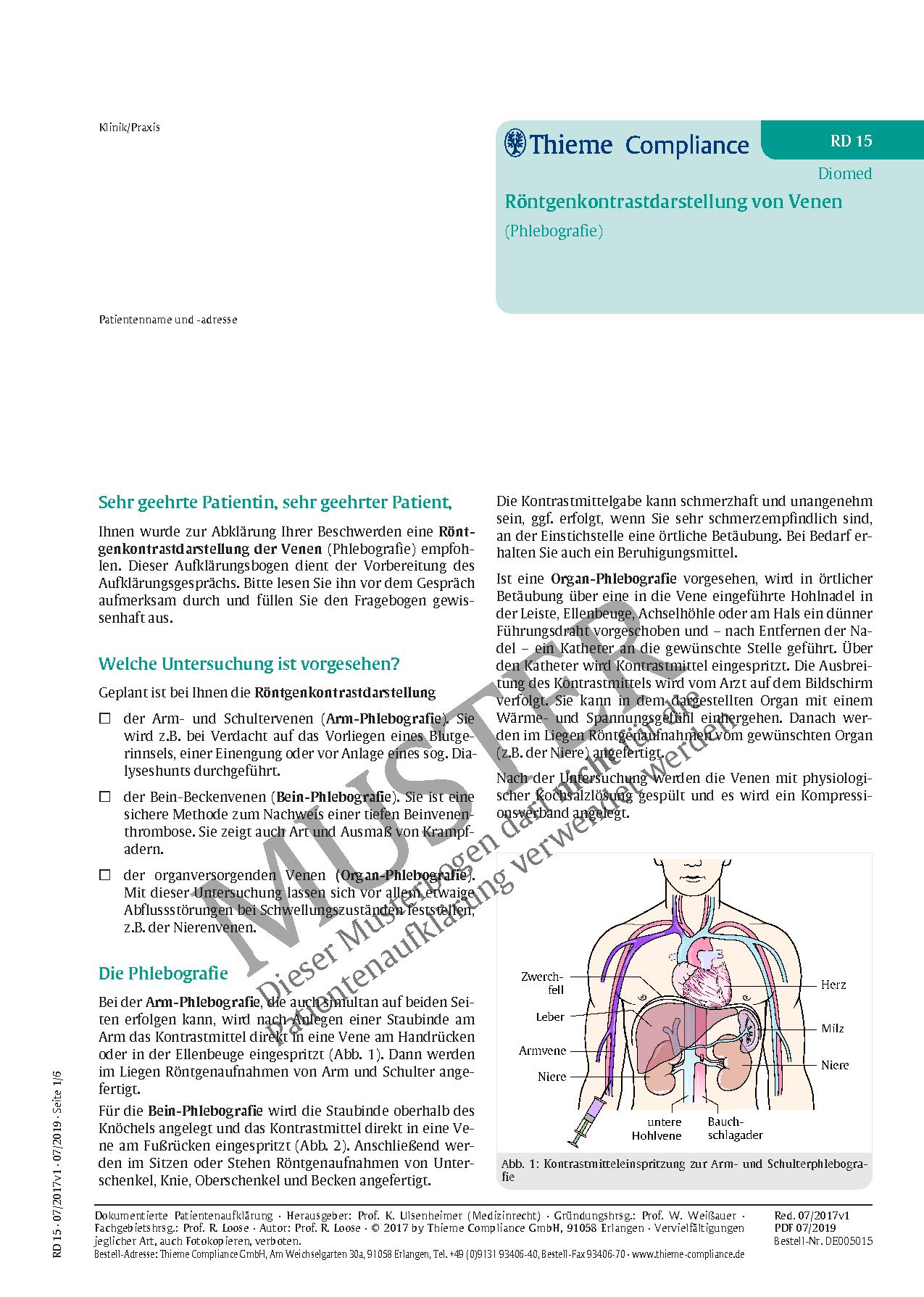 Atemberaubend Armvene Ideen - Anatomie Von Menschlichen ...