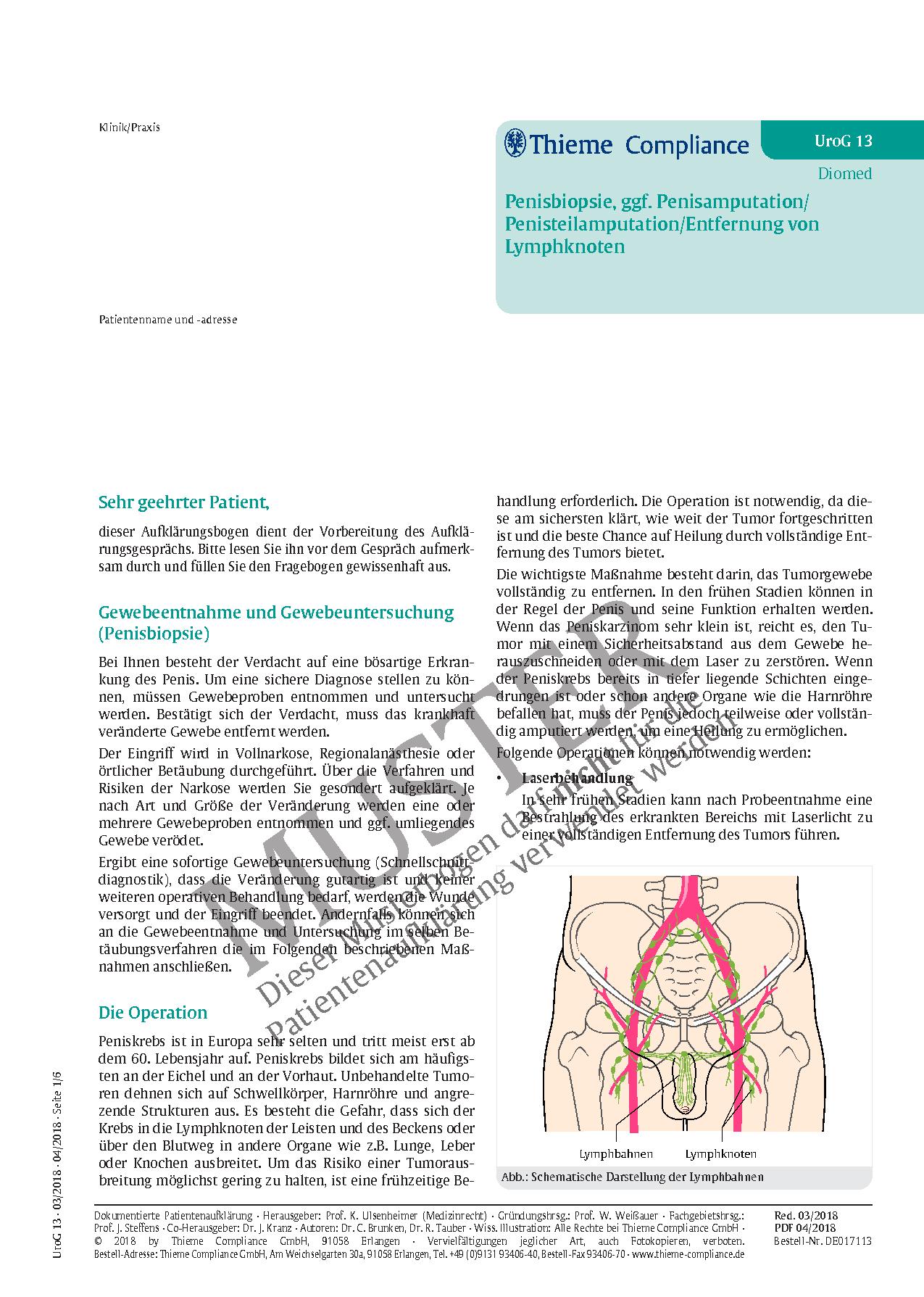 Fantastisch Männlich Lymphknoten Ideen - Anatomie Ideen - finotti.info