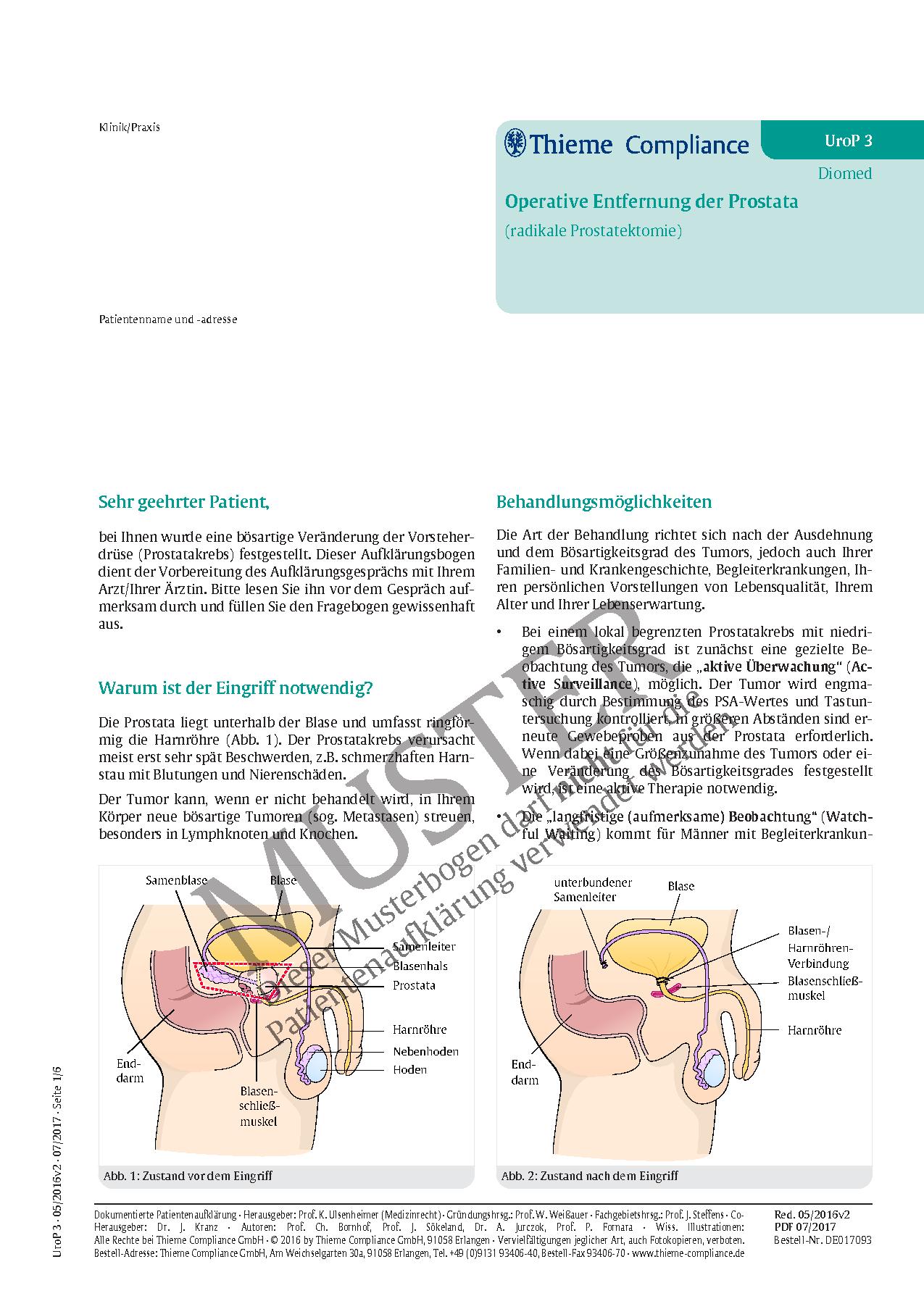 Gemütlich Lymphknoten Lage Bild Bilder - Physiologie Von ...