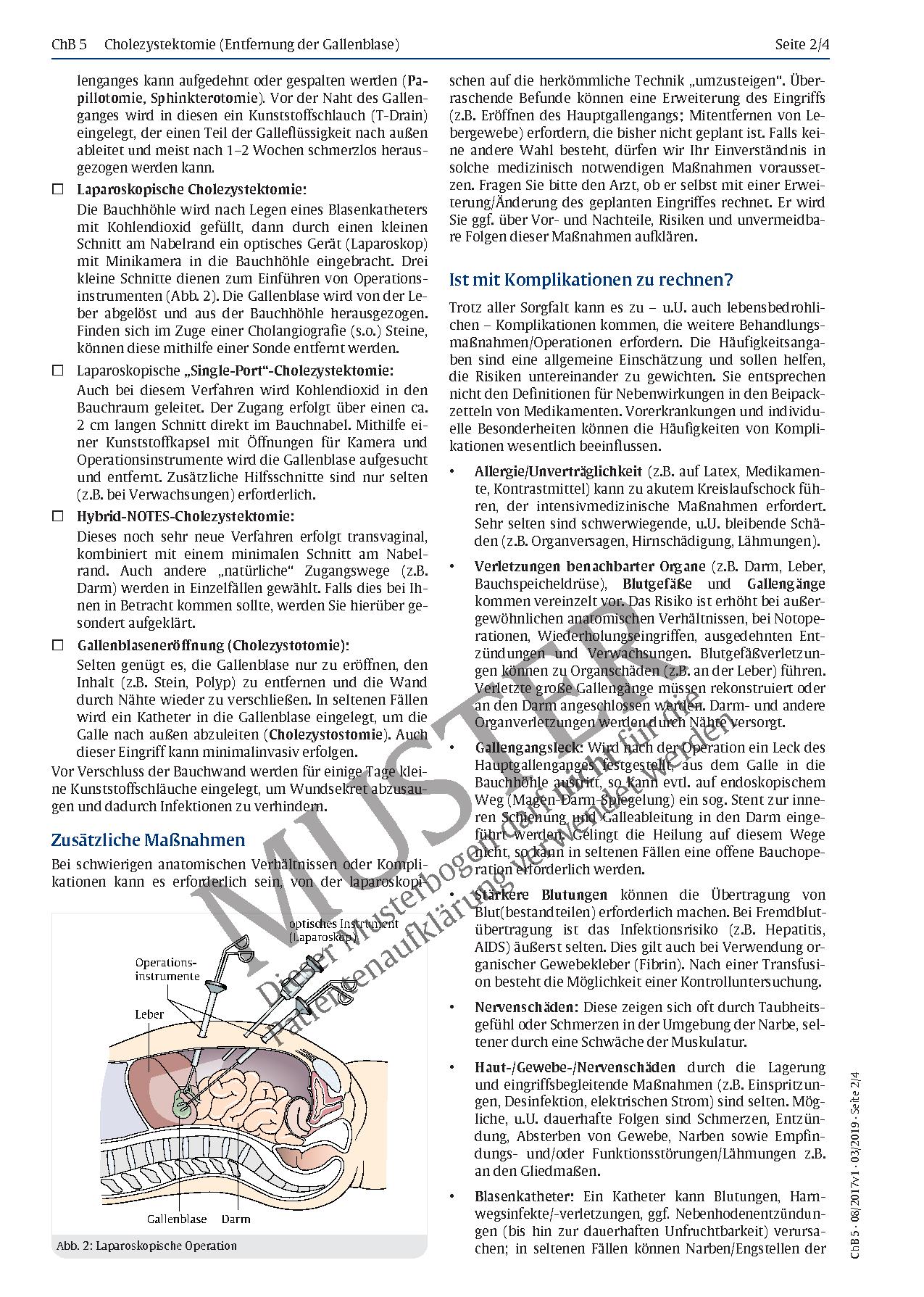 Gemütlich Laparoskopische Cholezystektomie Anatomie Zeitgenössisch ...