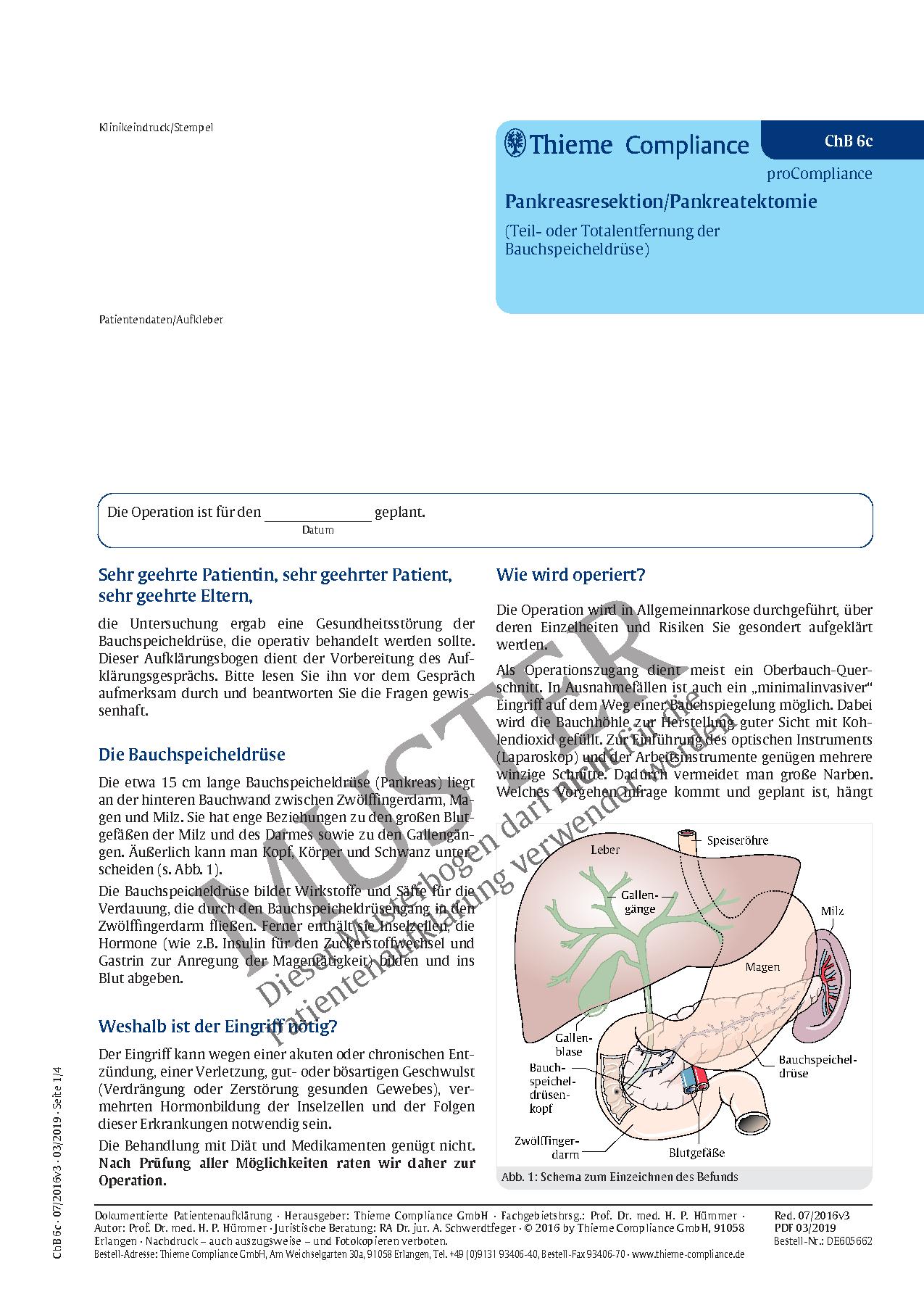 Groß Anatomie Rechte Seite Bauch Zeitgenössisch - Anatomie Von ...