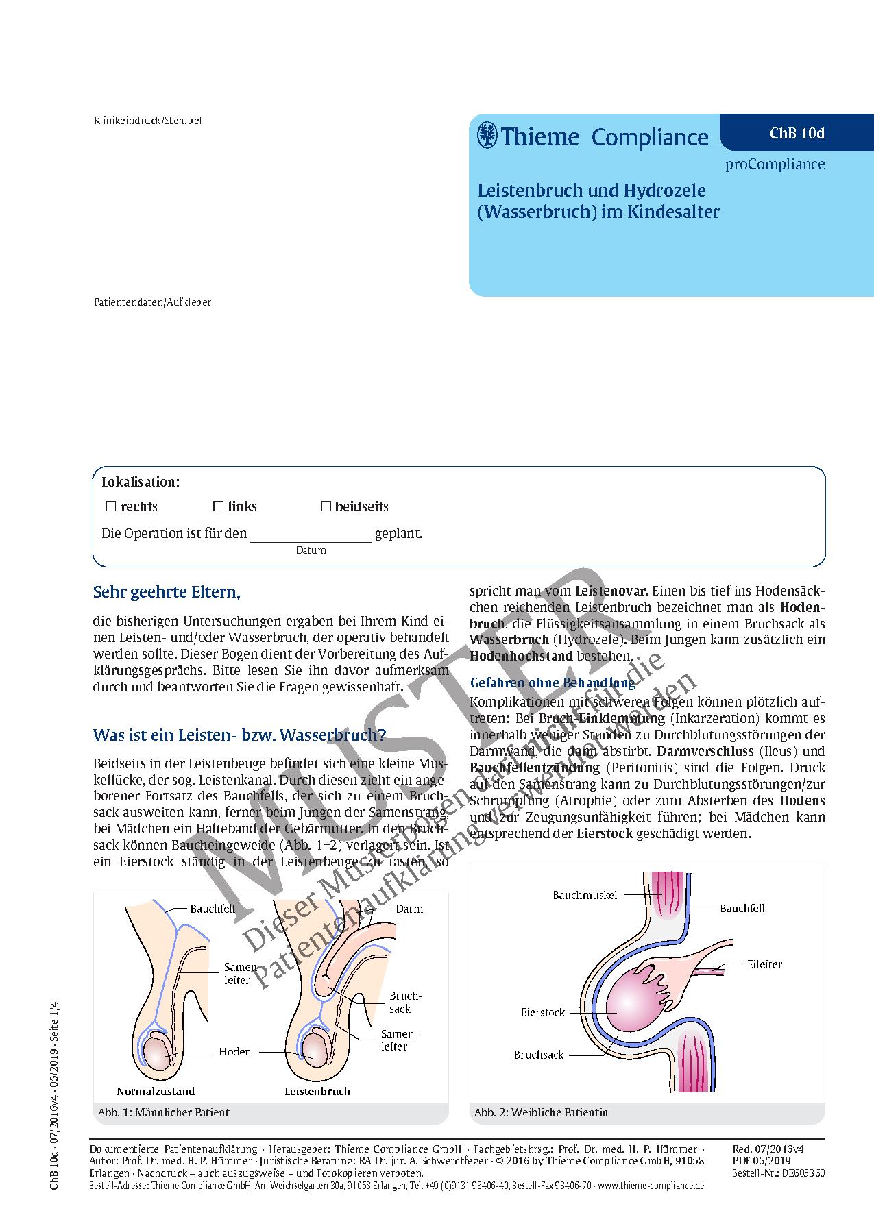 Großzügig Anatomie Und Physiologie Des Leistenbruches Zeitgenössisch ...