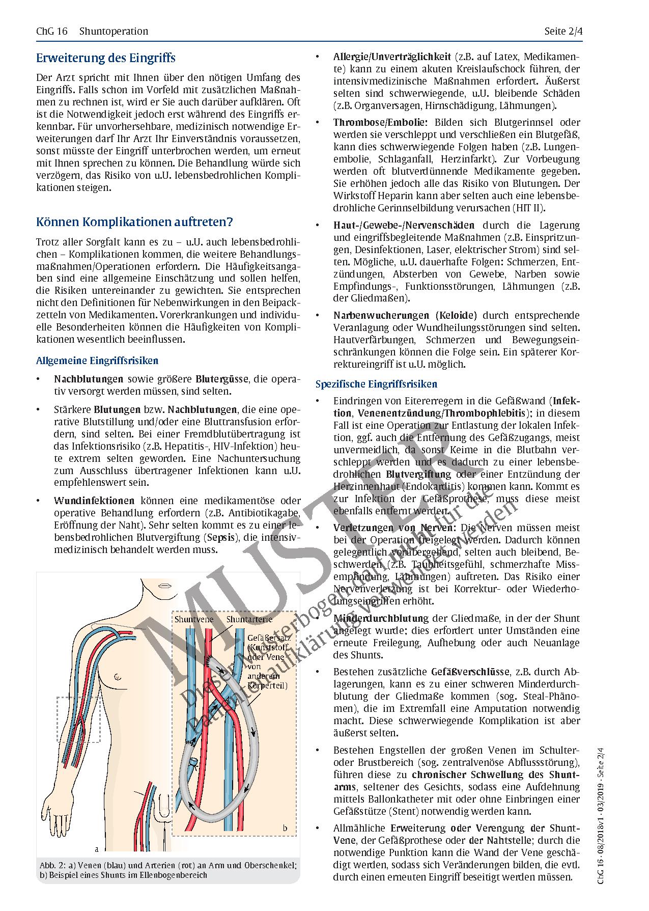 Beste Oberschenkelvenen Anatomie Bilder - Anatomie Von Menschlichen ...