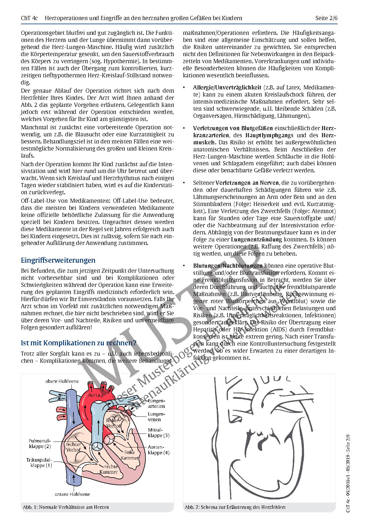 Großzügig Großen Gefäße Des Herzens Anatomie Bilder - Anatomie Ideen ...