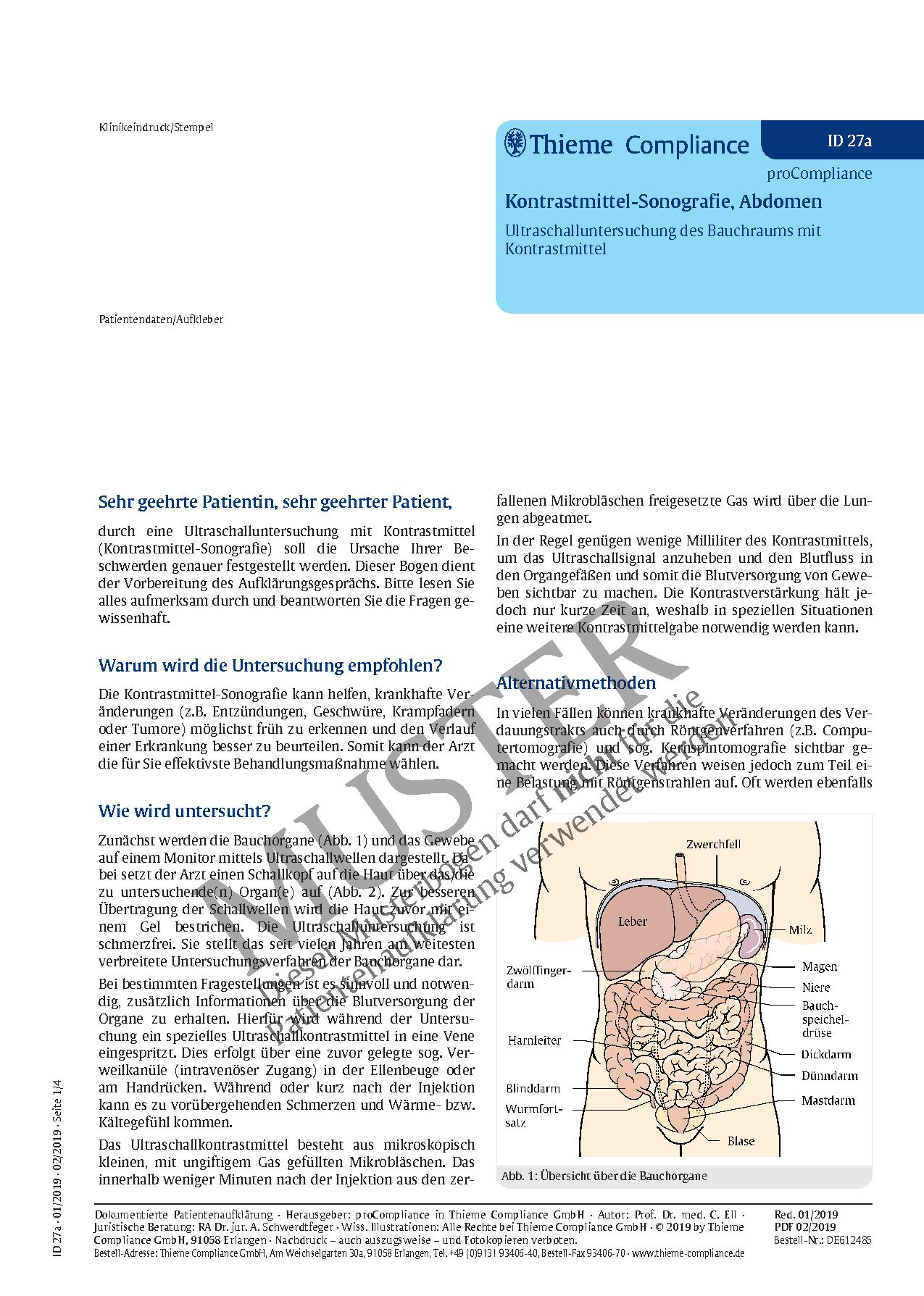 Tolle Der Blutfluss Zu Den Nieren Bilder - Anatomie Von Menschlichen ...