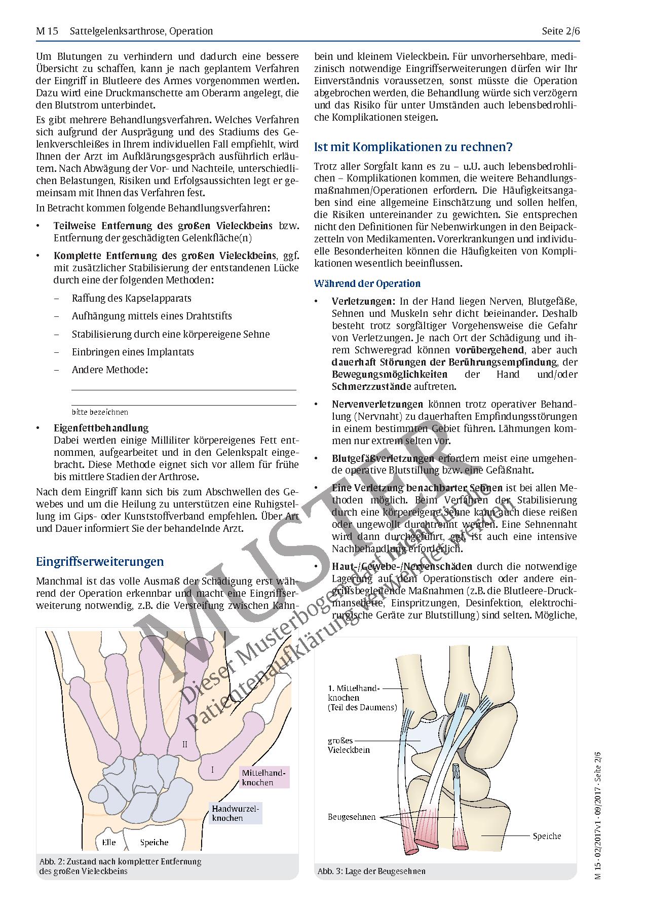 Nett Kompakte Knochen Lage Bilder - Anatomie Und Physiologie Knochen ...