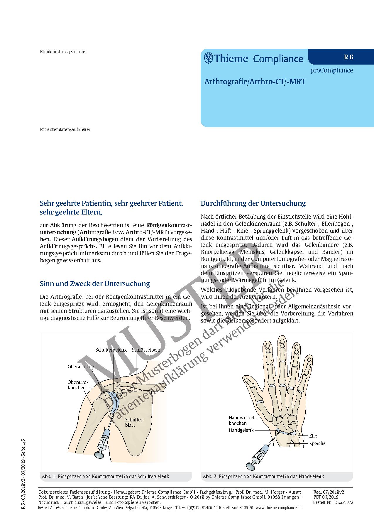 Schön Ellenbogen Bänder Anatomie Bilder - Physiologie Von ...