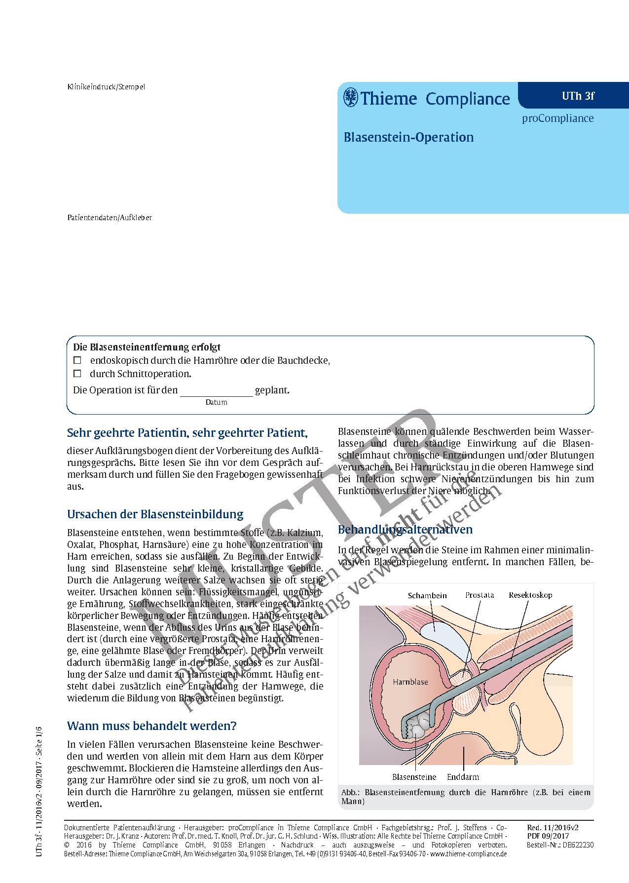 Fantastisch Wo Die Nieren Entfernt Fotos - Anatomie Ideen - finotti.info