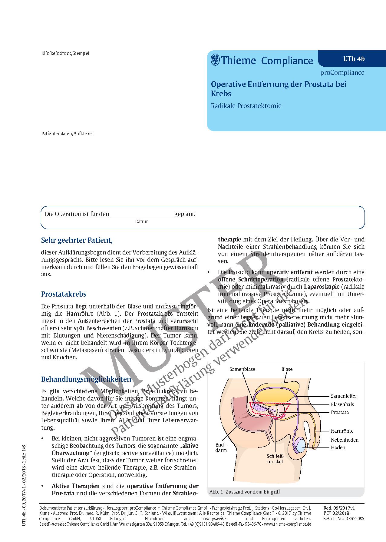 Großartig Lage Der Prostata Fotos - Anatomie Ideen - finotti.info