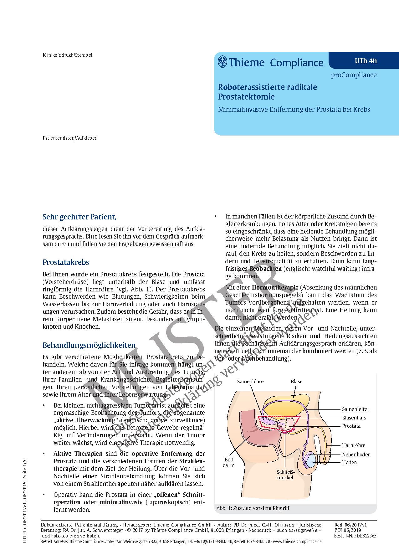 Tolle Anatomie Und Physiologie Der Prostata Galerie - Physiologie ...