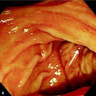 Endoscopic retrograde cholangiopancre    - eRef, Thieme
